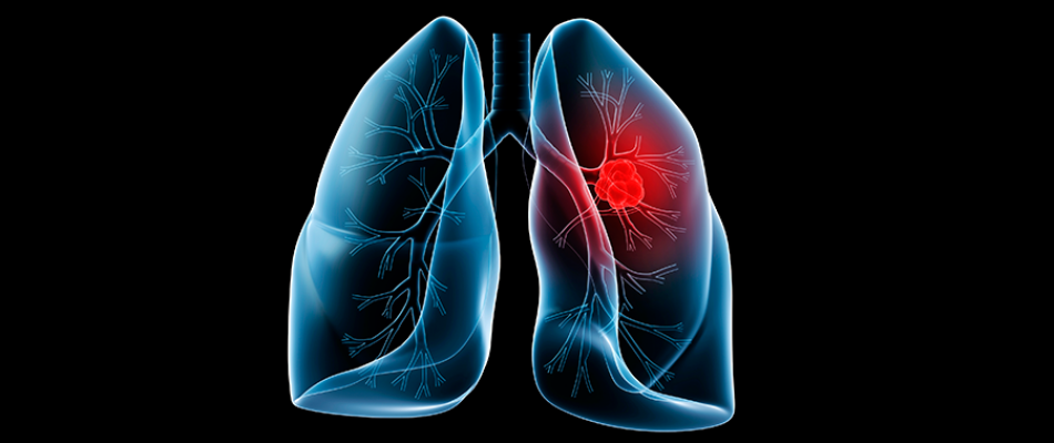 lung-web